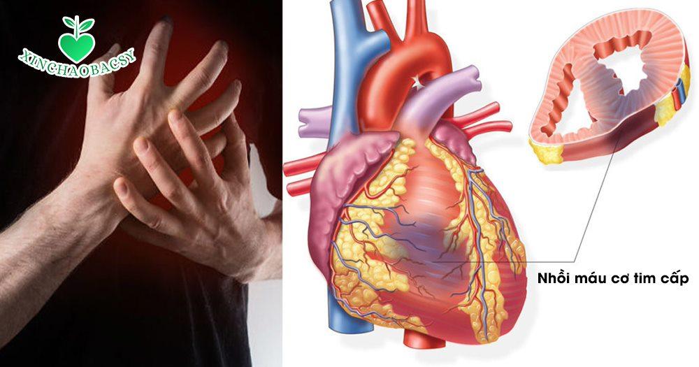 Nhồi máu cơ tim cấp – Nắm bắt cơ hội vàng để sống sót