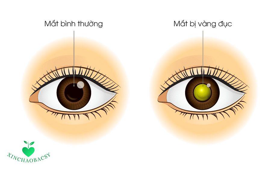 Mắt bị vàng đục – Không cẩn thận dễ mù lòa nhanh chóng